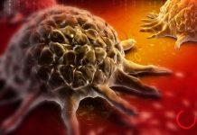 1539117461 cancer cell